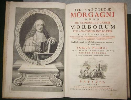 Morgagni, Giovanni Battista1) Ganzseitiger handschriftlicher Brief von Giamba (ttista) Morgagni (15 x 19,5 cm) mit beiliegender Übersetzung ins Englische, Französische und Italienische.